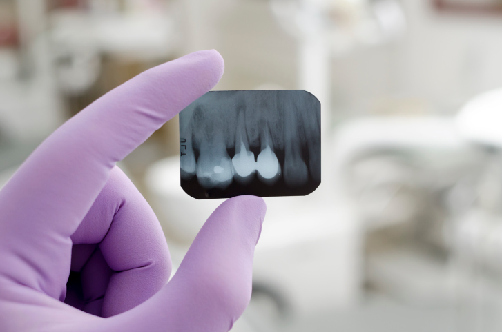 How Dental Implants Can Improve Oral Health