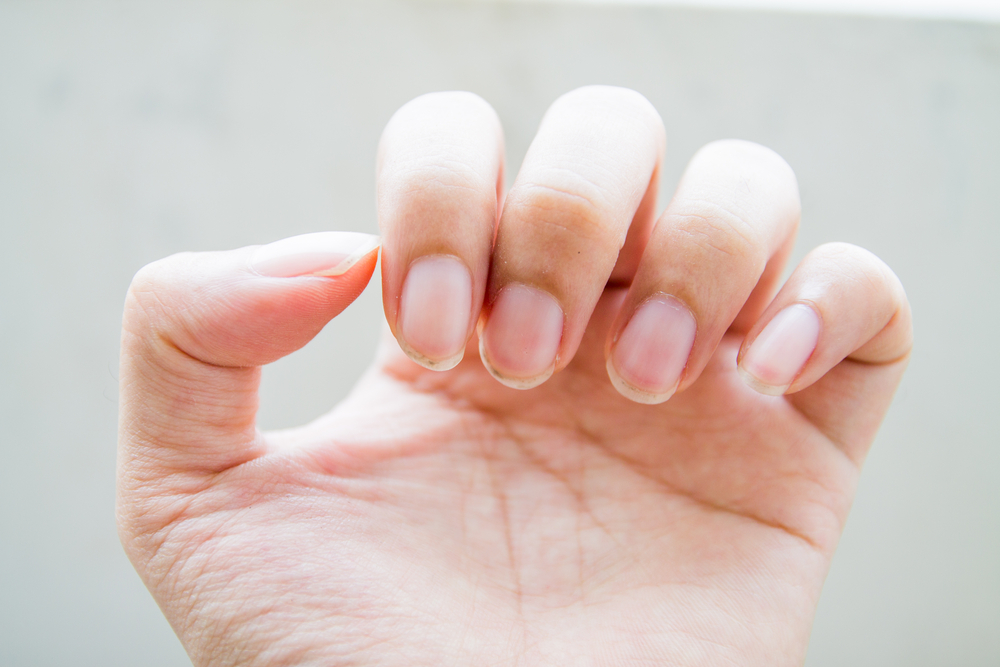 7 Skin and Nail Problems That May Suggest a Health Issue