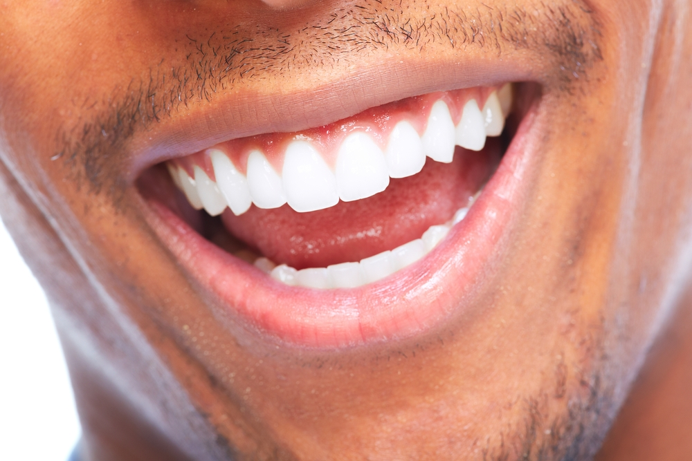 4 At Home Tricks to Whiten Your Teeth